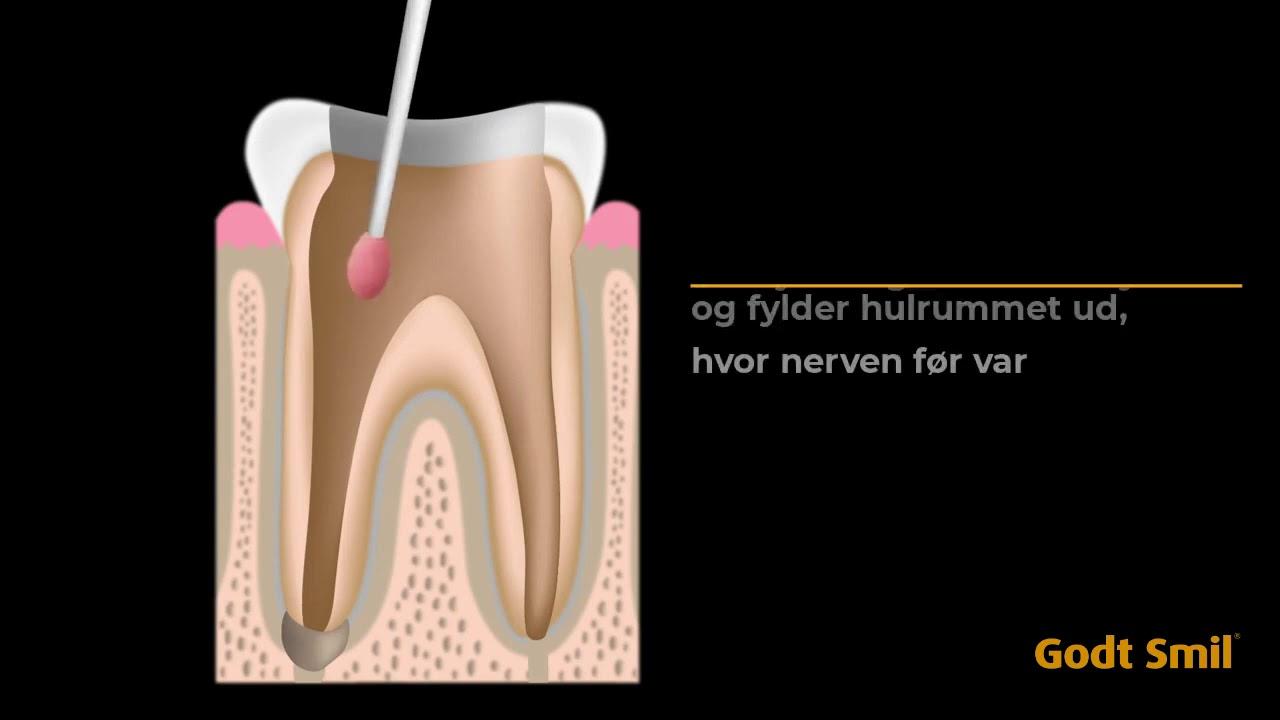 Tand gør ondt rodbehandlet Rodbehandling