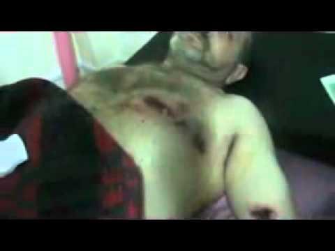 شام حمص باباعمرو إصابة طفل بعمر سنتين ...