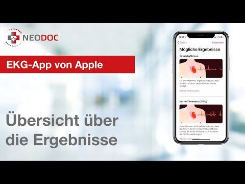 EKG-App: Diese Ergebnisse zeigen dir die Apple Watch und das iPhone