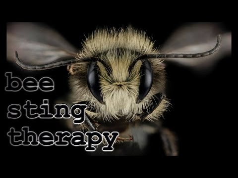 PP107 Bee Sting Therapy