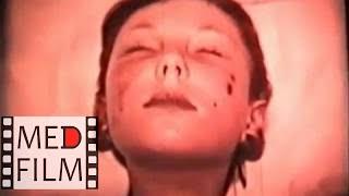 Геморрагический васкулит у детей © Hemorrhagic vasculitis in children