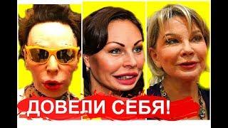 Звёзды после НЕУДАЧНОЙ ПЛАСТИКИ/Довели себя!