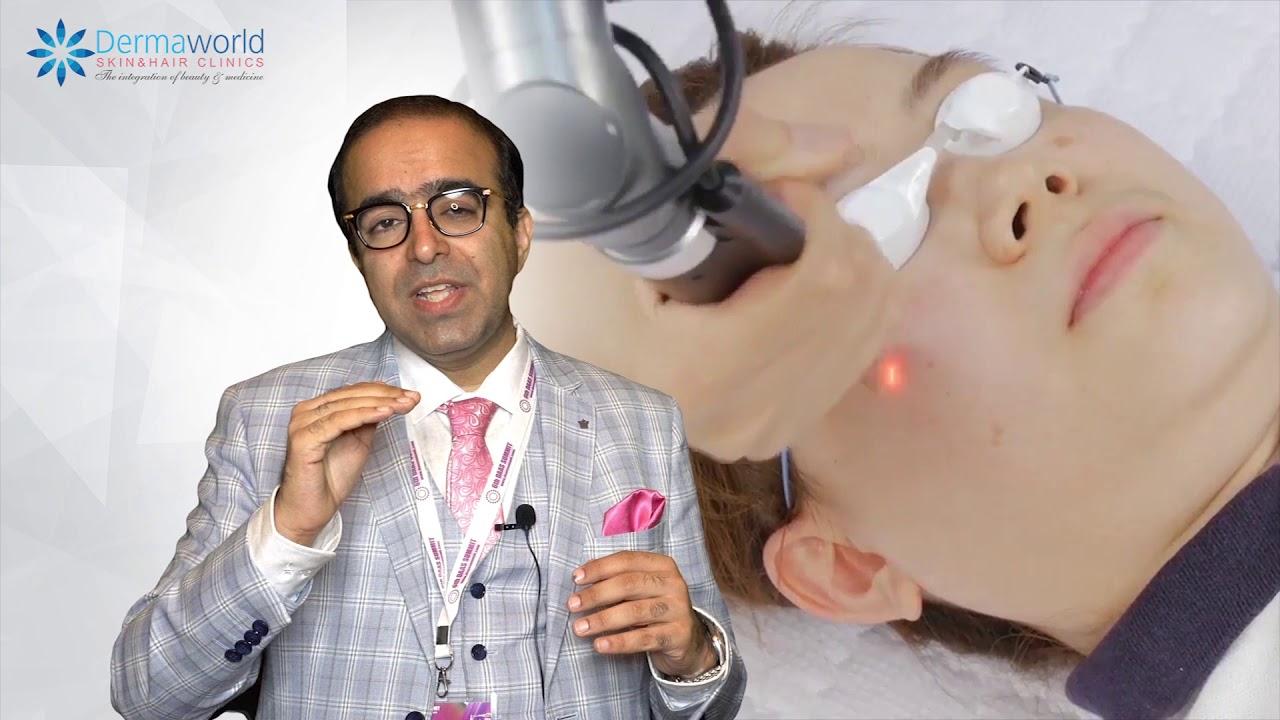 Laser Skin Toning Treatment In Hindi Benefits Of Laser Toning Laser Toning In Delhi Youtube