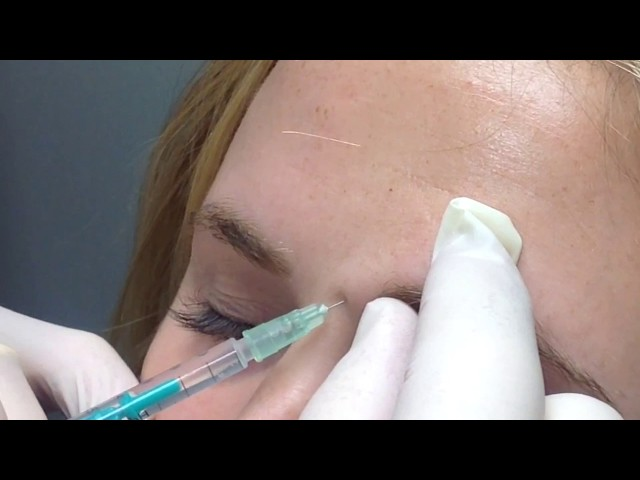 Live Botox Injection   - Improved skin appearance