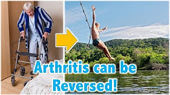 Arthritis can be Reversed!