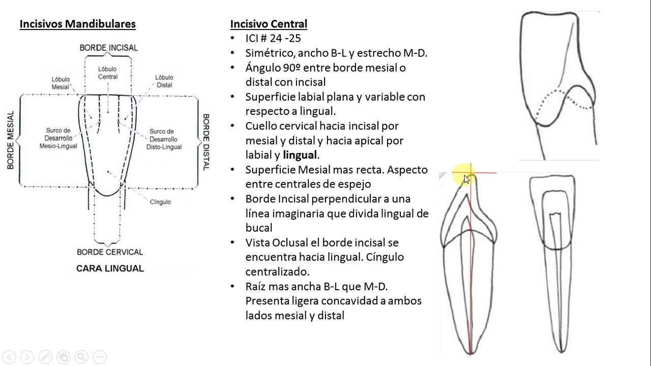 Incisivo Mandibulares ,Anatomia Dental Facil - YouTube
