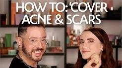 hqdefault - Best Concealer For Acne Marks