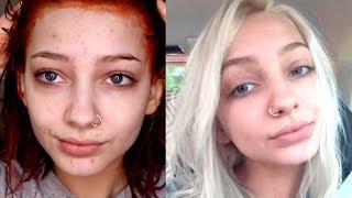How I Cleared My Skin