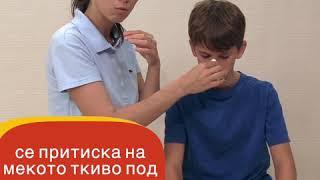 Крвавење од нос