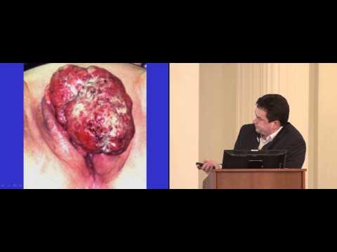Реконструктивно-пластические операции при раке вульвы