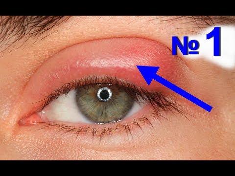Ячмень на глазу как лечить. Лечение ячменя в домашних условиях - № 1 | #edblack #ячменьлечение