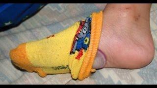 Saiba o que acontece se você  dormir com uma cebola nos pés! thumbnail