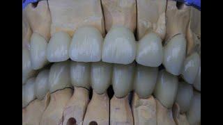 Металлокерамика (теория, онлайн обучение для зубных техников)