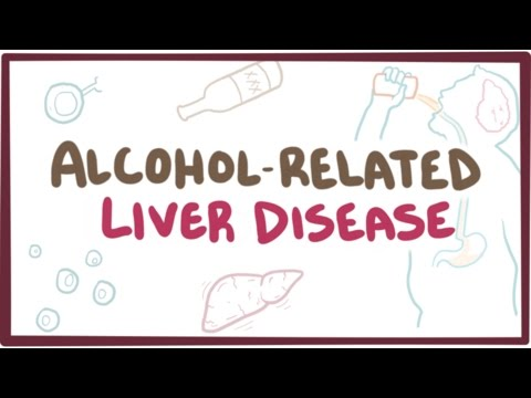 Alcohol-related liver disease – causes, symptoms & pathology