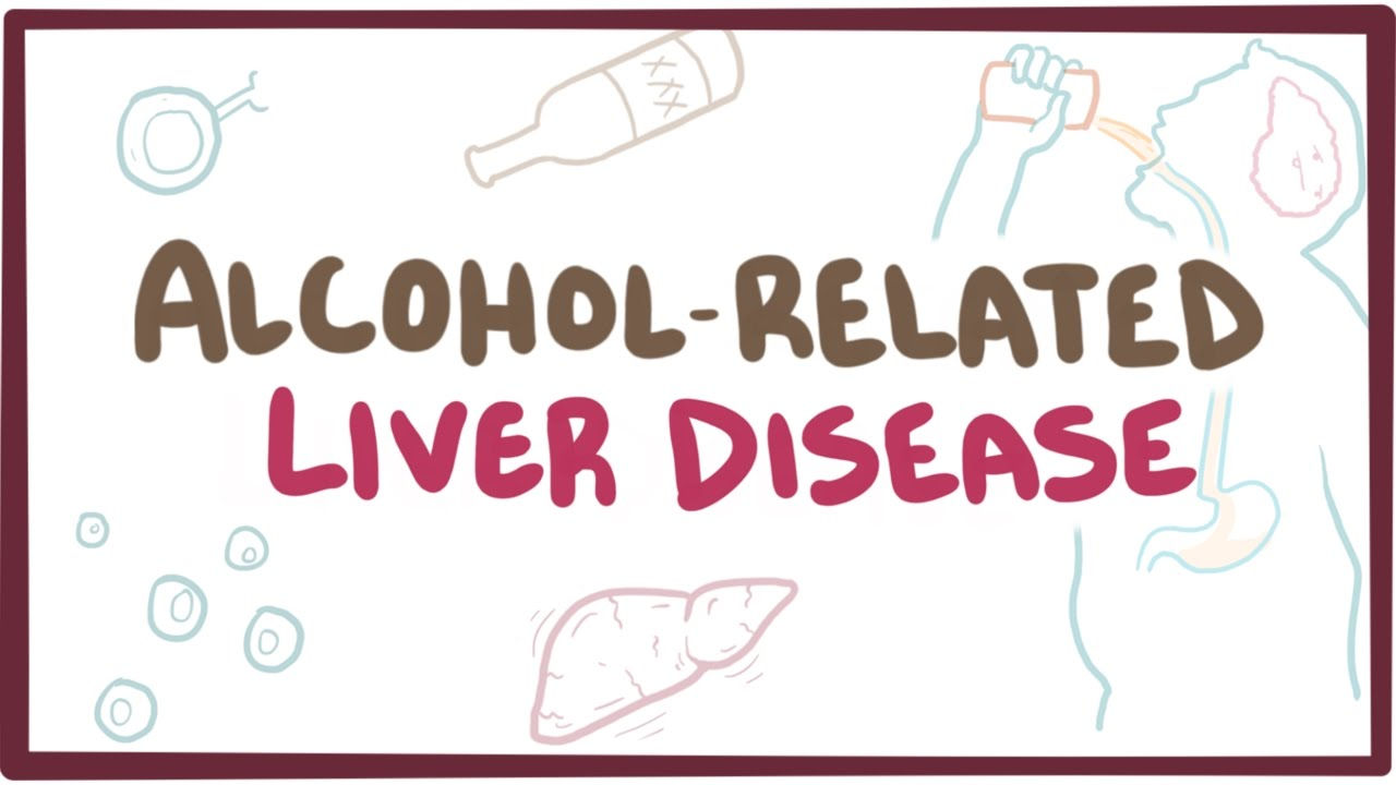 Alcohol and Liver Disease - British Liver Trust