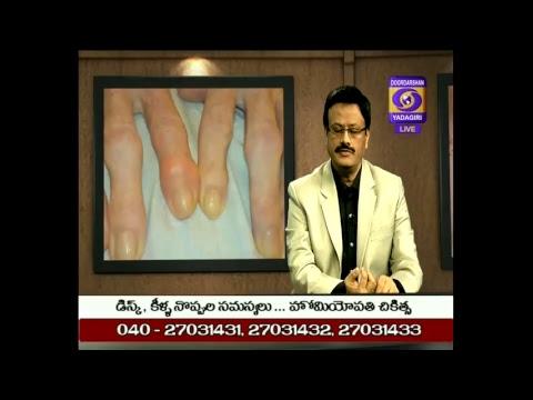 Aarogya darshini ,Homeopathic Remedy for Arthritis/కీళ్ళ నొప్పులు  : Dt:12.11.2018