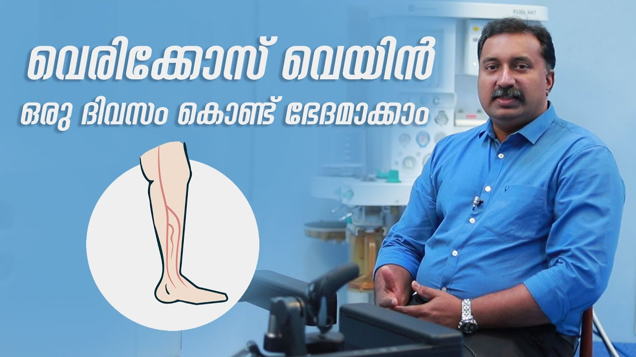 care a ajutat osteopatul de la varicoză tratamentul după îndepărtarea picioarelor varicoase