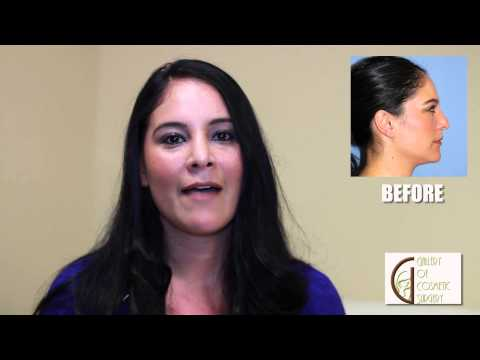 Orange County Open Septorhinoplasty - Dr Sadati Newport Beach