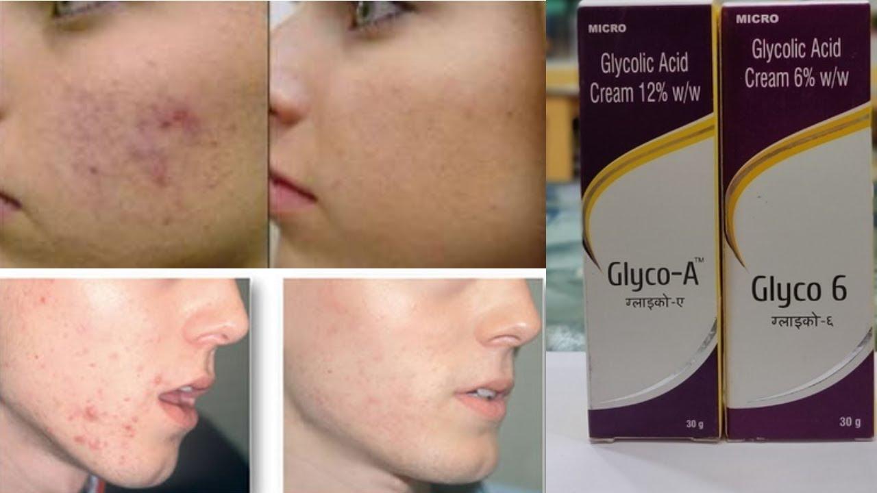 Skinoren Cream Is Used For Skin Whitening Acne Pigmentation Skin Whitening Acne Treatment By Informative Tv