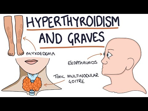 Understanding Hyperthyroidism And Graves Disease