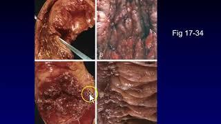 Hirschsprung's Disease.