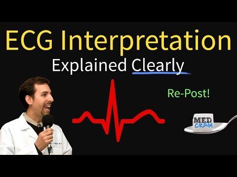 ECG Interpretation Explained Clearly and Succinctly - Arrhythmias Blocks Hypertrophy