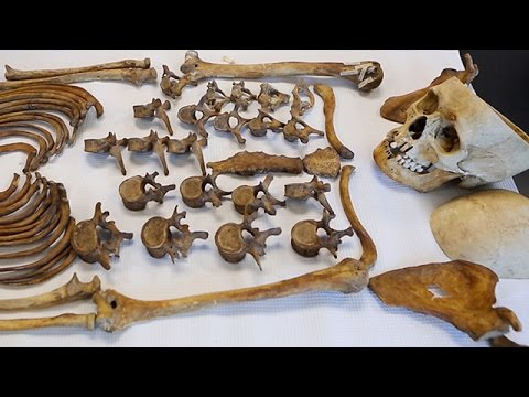 Identifying The Dead Through Science At N.J.'s Forensic Anthropology Laboratory