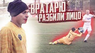 Download ХУДШИЙ МАТЧ ВРАТАРЕЙ АМКАЛА     ТРАВМА ФЕДОСА Mp3 and Videos