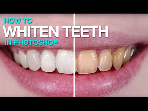 How To Whiten Teeth In Photoshop Youtube