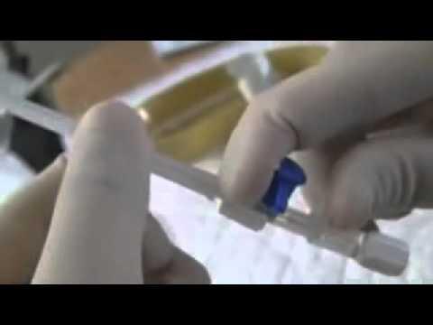 كيفية تركيب الكانيولا بسهوله جدا