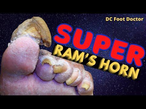 Super Ram's Horn Toenail: Super Challenging