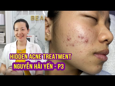 Hidden Acne I Điều trị mụn hiệu quả số 1 tại Hiền Vân Spa INguyễn Hải Yến IPart 3I 517