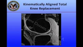Understanding Kinematic Alignment