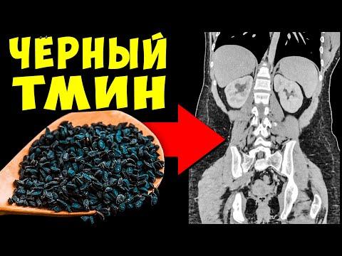 Черный тмин лечебные свойства