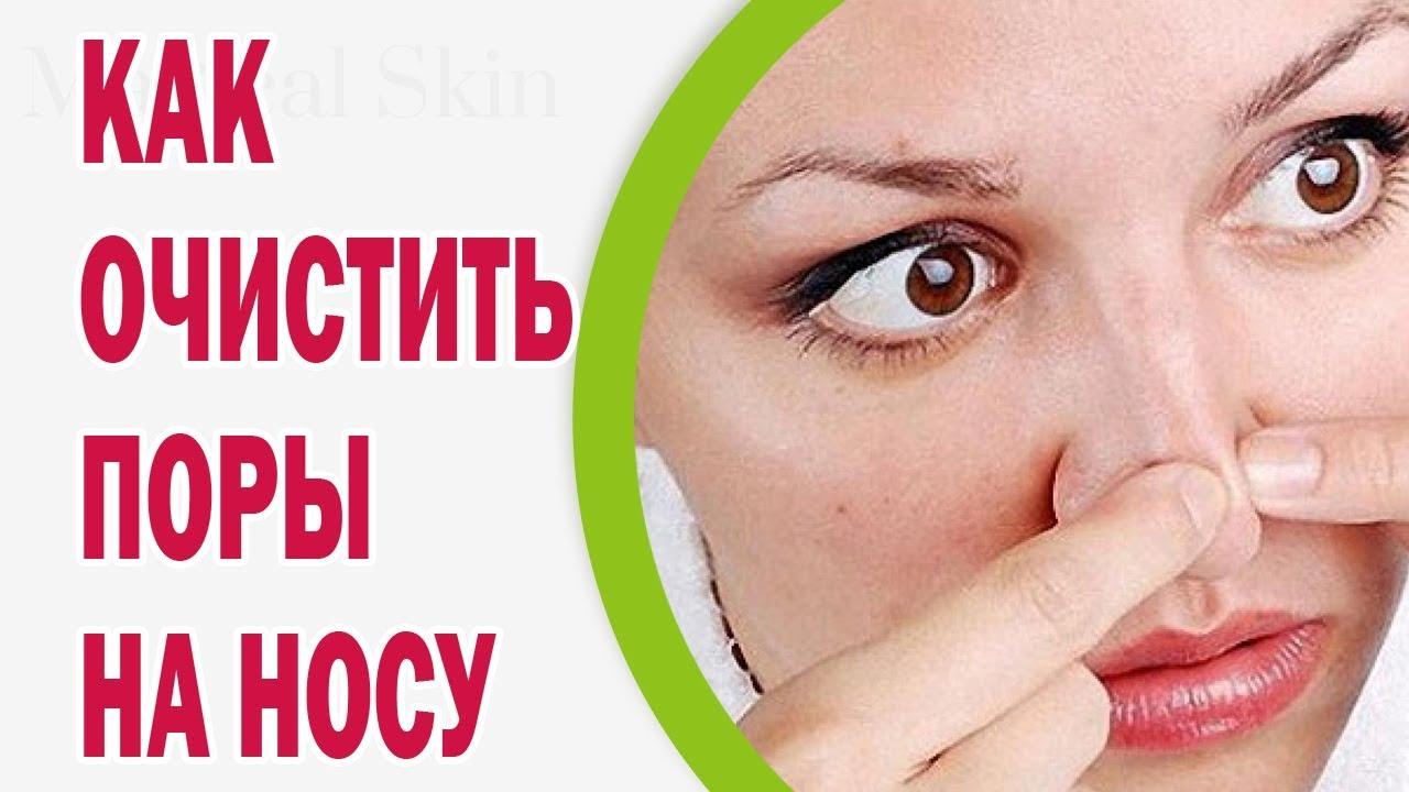 Вылечить кожу от прыще и черных точек на лице