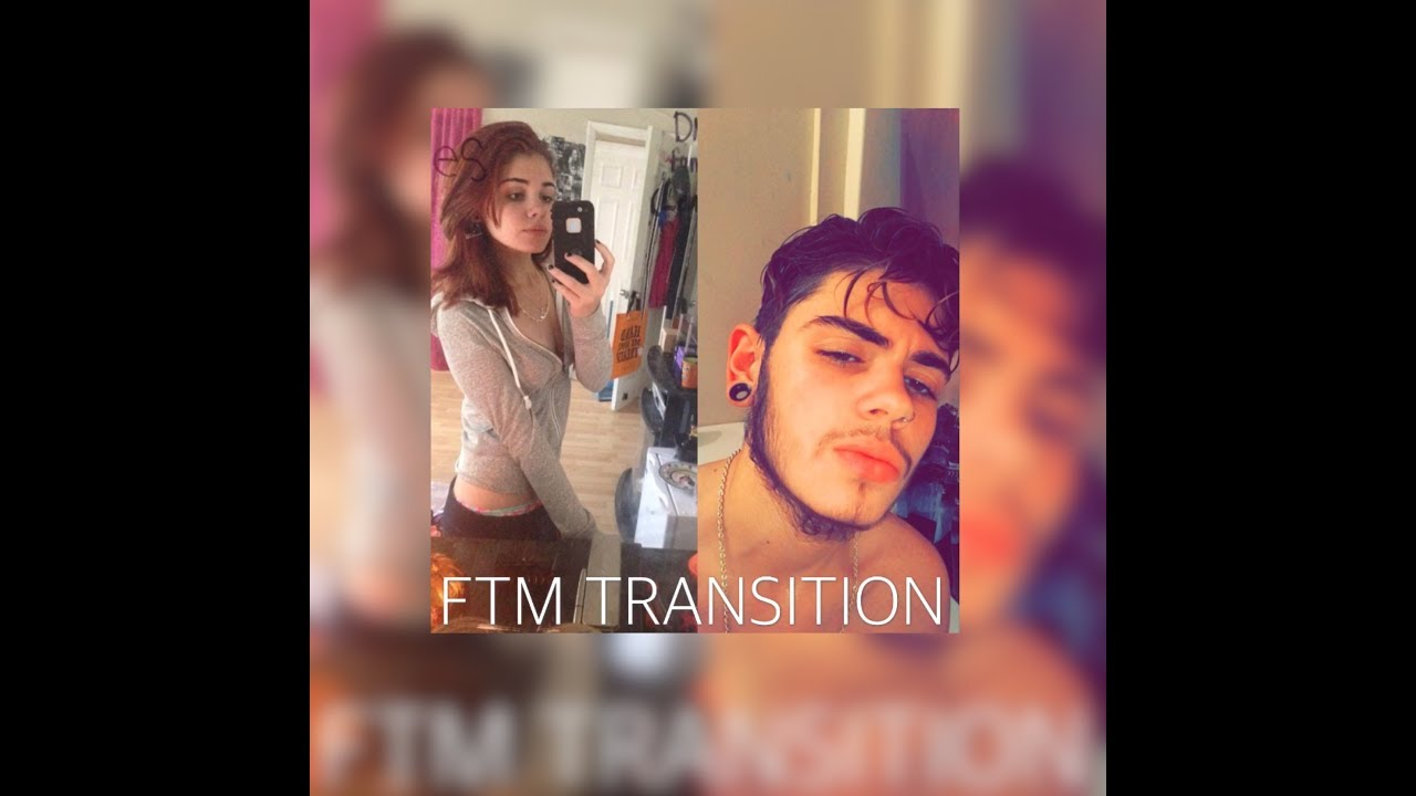 FTM TRANSITION // ONE YEAR ON TESTOSTERONE