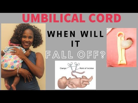 How many days before umbilical cord falls off.
