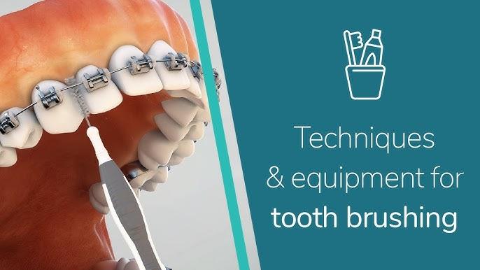 تنظيف الاسنان مع وجود تقويم بالفم Youtube