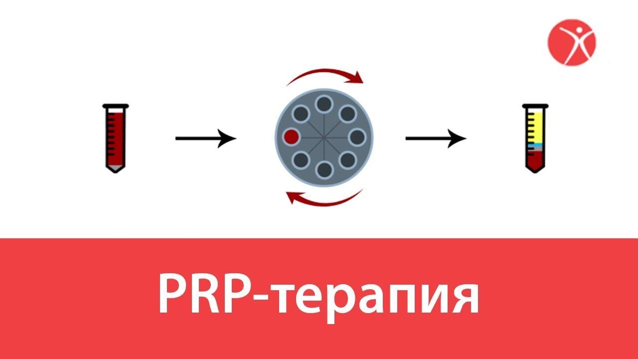 PRP-терапия общая видео-схема