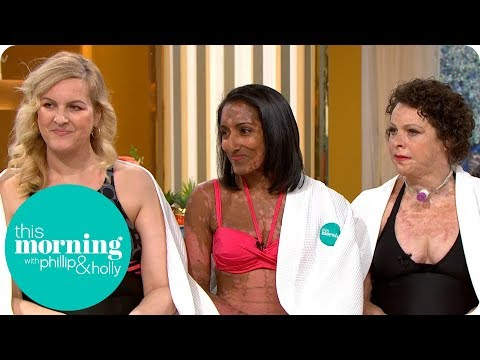 The Disfigured Models Embracing Their Shapes, Sizes and Scars | This Morning