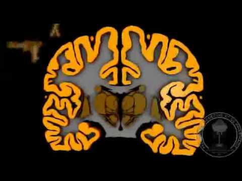 אנטומיה של המוח
