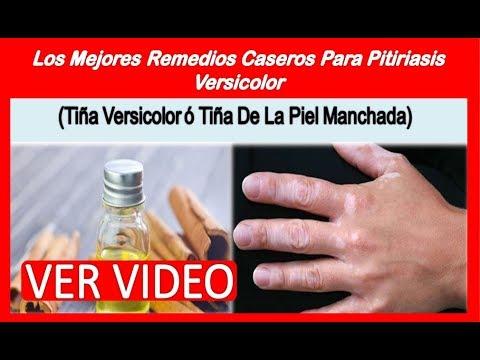 Tratamientos naturales para tina versicolor