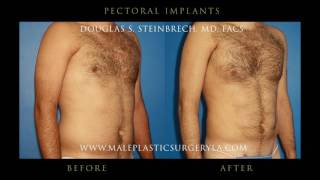 Pectoral Chest Implants And After Os Los Angeles