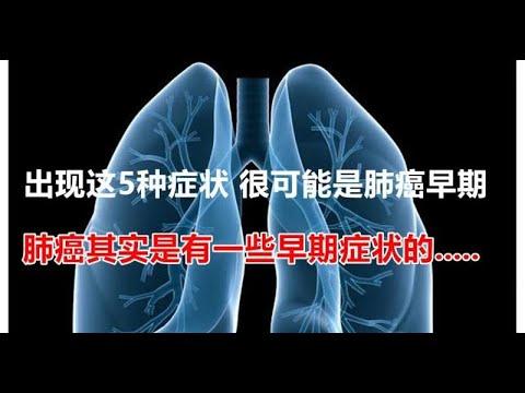 出現這5種癥狀很可能是肺癌早期.肺癌其實是有一些早期癥狀的... - YouTube