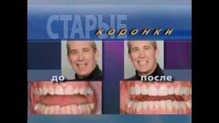 видео Композитные виниры: цена в Санкт-Петербурге на один зуб с установкой, фото до и после