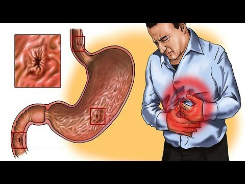 5 Effective Home Remedies for Gastritis | Natural Cures
