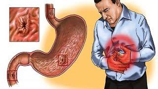 Effective Home Reme Gastritis