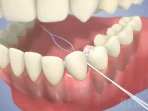 Austin dental bridge flossing with a dental bridge youtube for What is flossing