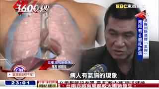 密醫針灸拔罐放血 女子昏迷喪命【3600秒】