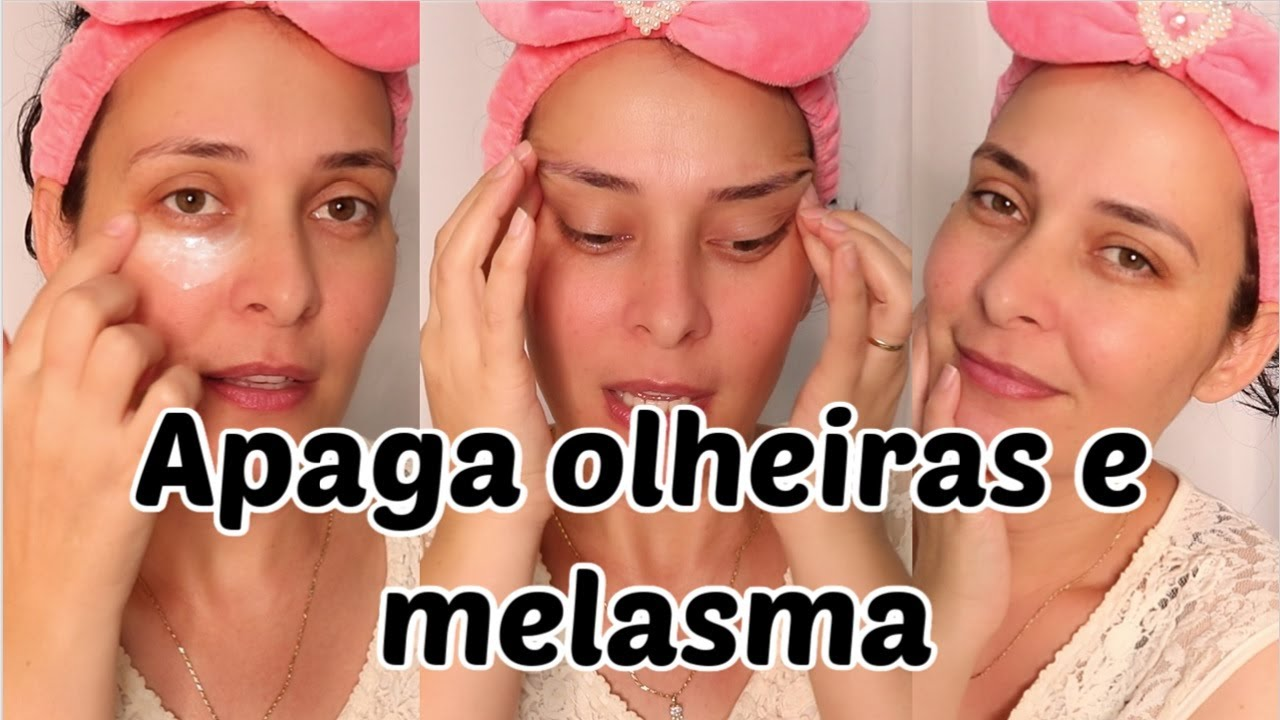 APAGA MELASMA E OLHEIRAS USE ANTES DE DORMIR